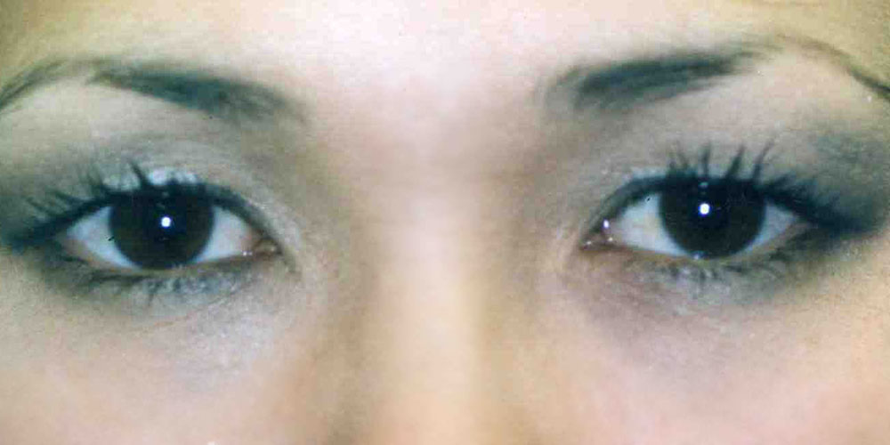 Dr Archie Lamb   Asian Double Eyelid Surgery