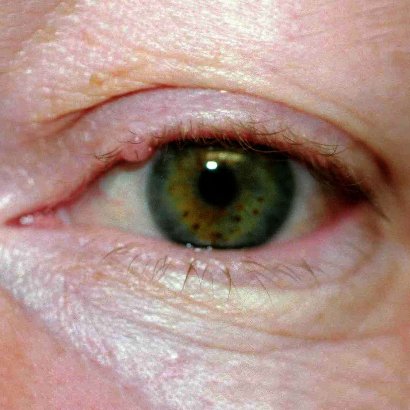 Dr Archie Lamb | Eyelid Cysts and Lesions